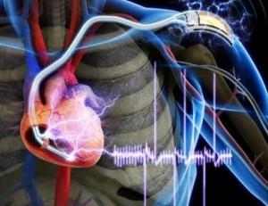 marcapasos corazon ingenieria hospitalaria cardioproteccion desfibrilador